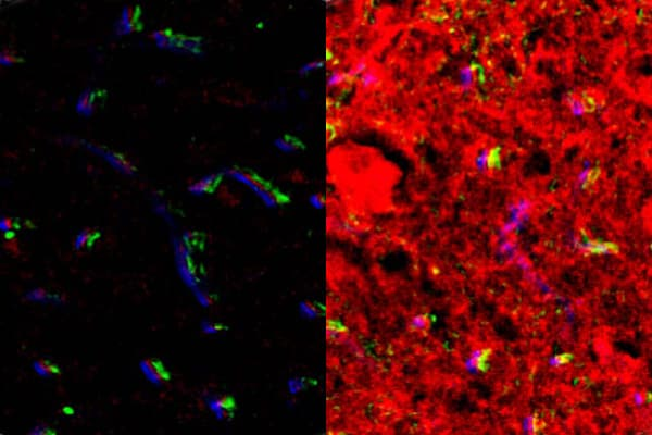 Fluorescence images of the brainstem obtained from nontumor mice after intranasal delivery (left) and FUSIN delivery (right). The brainstem, where the glioma was implanted, showed enhanced fluorescence signal by FUSIN compared with IN only.