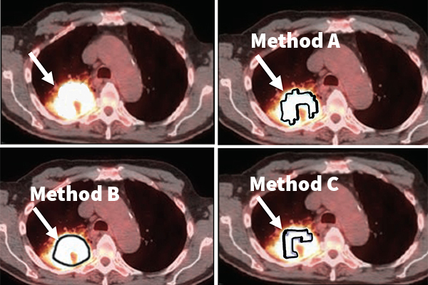 Which method to choose to delineate the tumor? In this example application, Jha's task is to find the metabolic tumor volume from a clinical PET image (top left). The photos in the top right and bottom row show that different segmentation methods to measure this volume give different results, demonstrating the need for no-gold-standard evaluation to find the optimal method. (Jha lab)}
