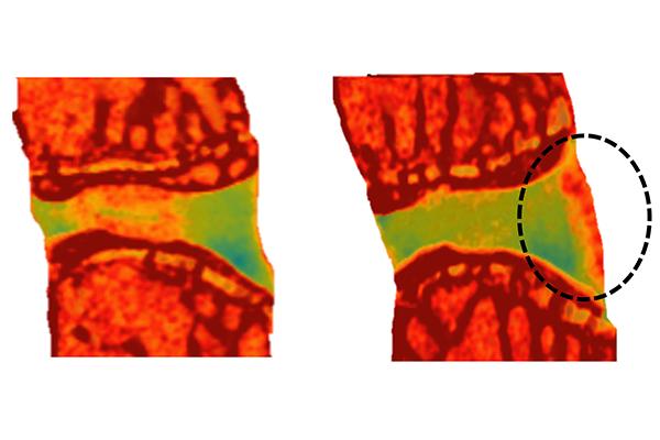 WashU engineering, orthopedic team to study painful degenerative condition